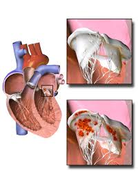 RHEUMATIC ENDOCARDITIS
