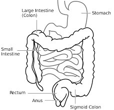 A CHRONIC CASE OF ILEO-COLITIS