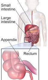APPENDICITIS CURED BY MEDICINE